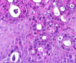 Adjuvant Nivolumab Approved for Resected Esophageal and GEJ Cancer